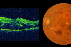 edema-maculare-prima